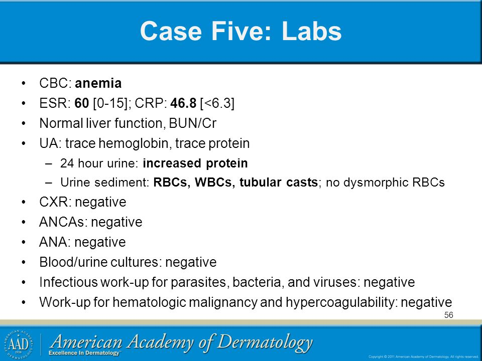 Case Five: Labs CBC: anemia ESR: 60 [0-15]; CRP: 46.8 [<6.3]